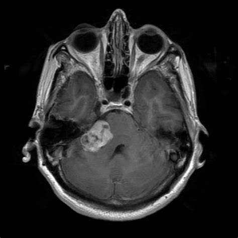 显微外科手术治疗听神经瘤患者的长期生活质量