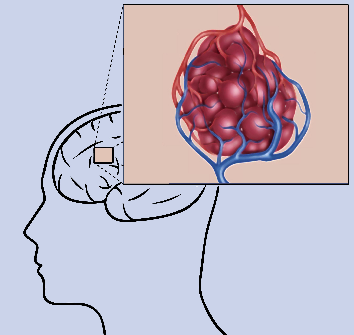 【脑海绵状血管瘤】患者关心的几大问题解答!