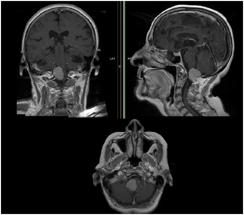 枕骨大孔区脑肿瘤