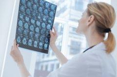 松果体区肿瘤早期症状有哪些?如何治疗?