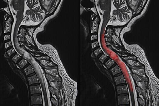 脊髓肿瘤手术恢复需要多长时间?