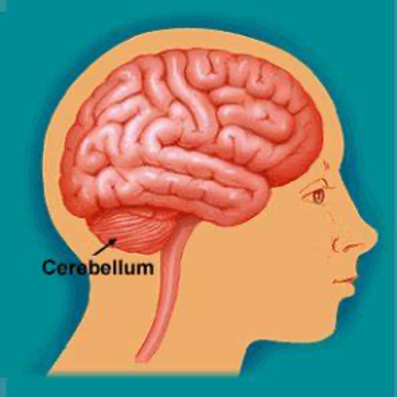 小脑肿瘤一般是良性还是恶性?需不需要出国治疗?