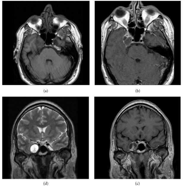 三叉神经鞘瘤再次复发怎么办?手术全切仍是主要目标