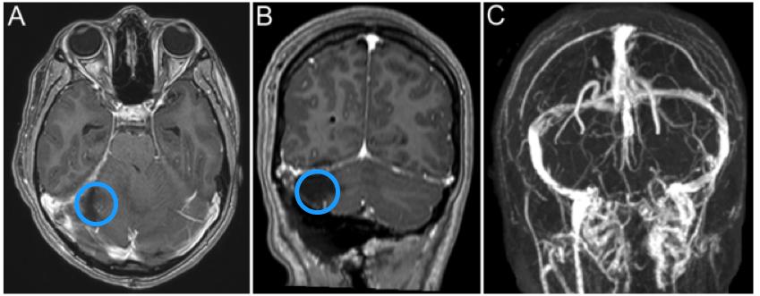 恶性脑肿瘤