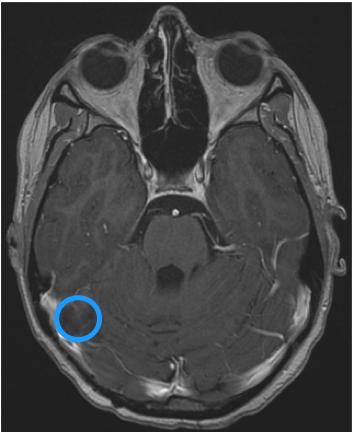 8年无复发,看13岁女孩怎么对抗巨大恶性脑肿瘤