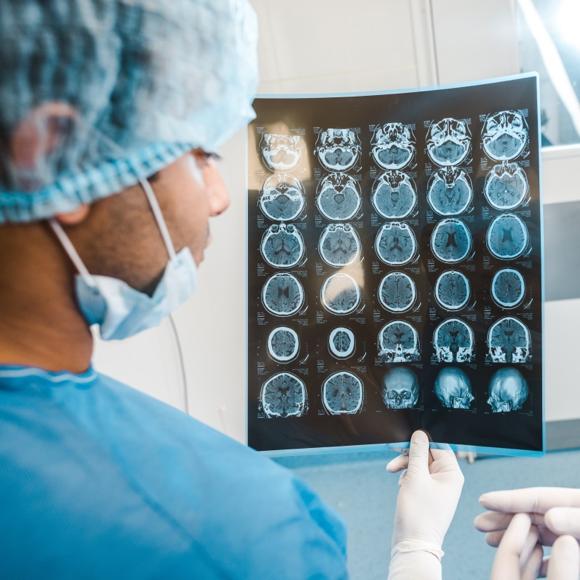 出国治疗脑瘤