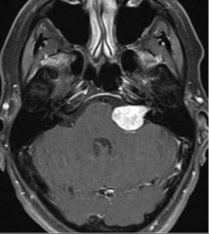 听神经瘤案例