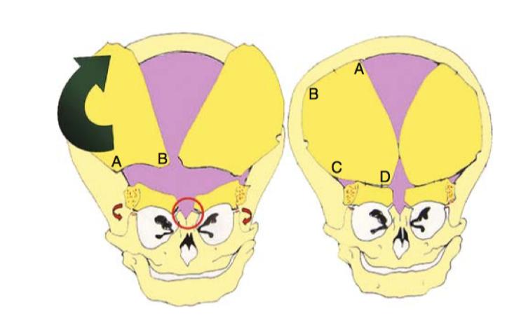 三角形头治疗