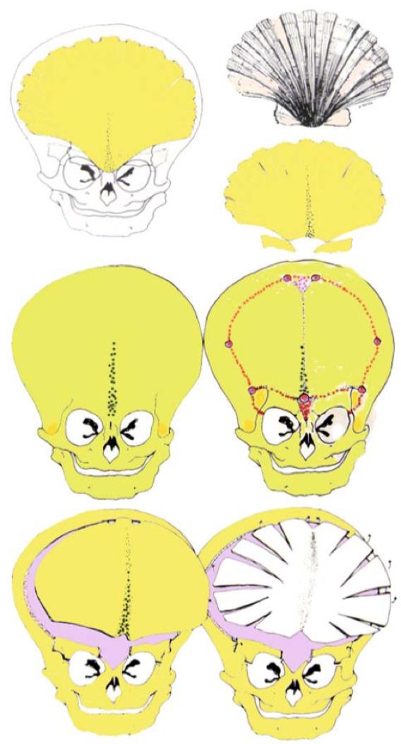 三角头手术治疗