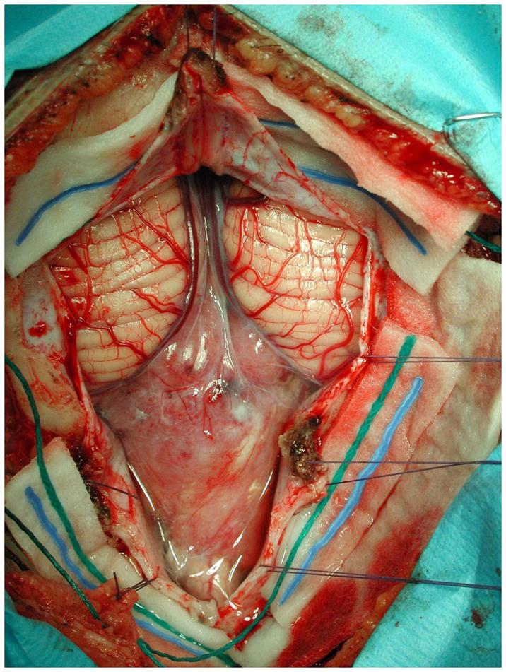 室管膜瘤治疗