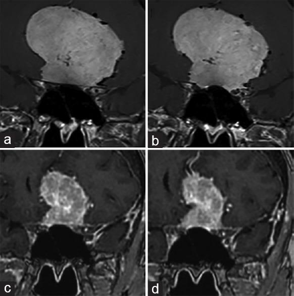 法国Froelich教授:醋酸环丙孕酮(CA)停用后,巨大脑膜瘤减小且视力恢复