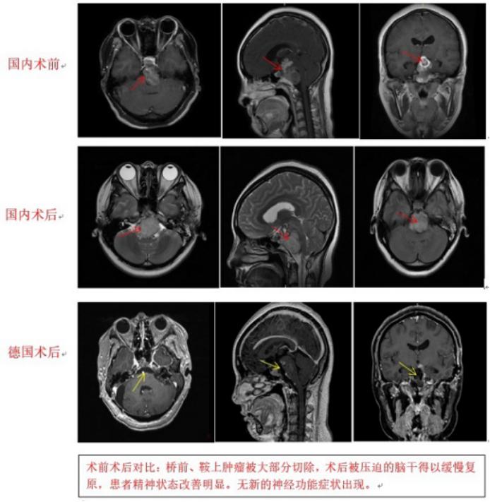 脊索瘤案例