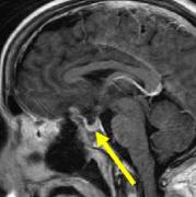 鞍结节脑膜瘤手术治疗新进展:神经内镜微创技