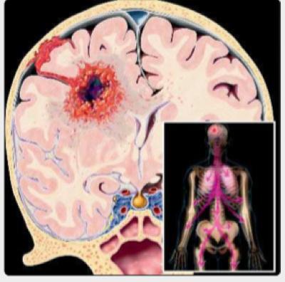 影像、尸检例证:胶质母细胞瘤转移的5种方式