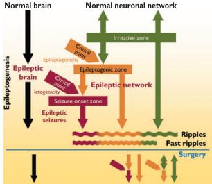 术中颅内脑电图局灶性快波切除可改善小儿癫痫