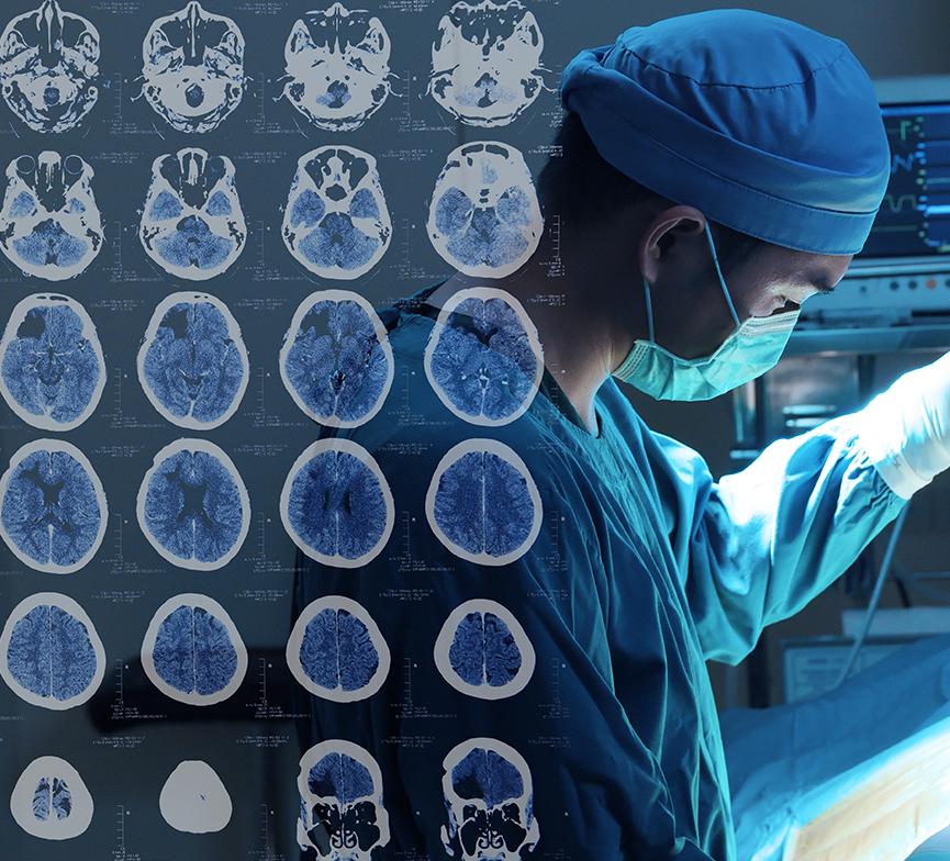 三叉神经鞘瘤