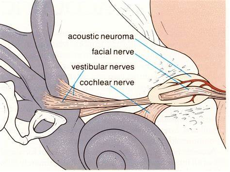 听神经瘤的主要评估指标和治疗策略
