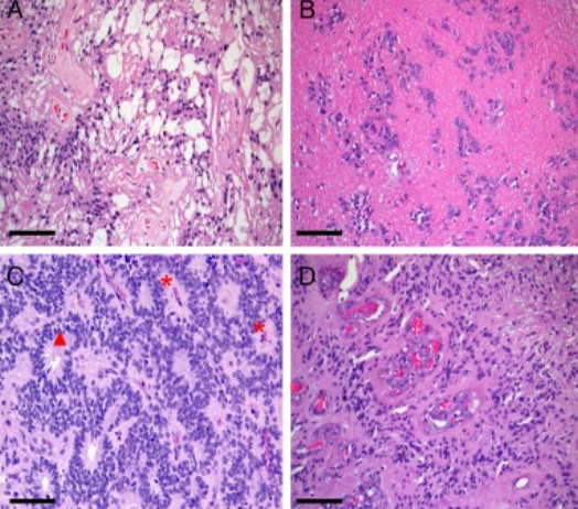 室管膜瘤二级是良性吗?