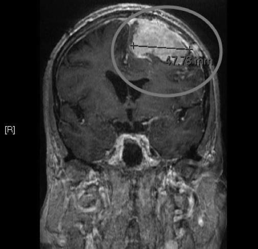 恶性脑膜瘤症状有哪些?有什么先进治疗办法?