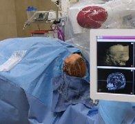 大师Rutka教授综述|SEEG及机器人在癫痫手术中的临