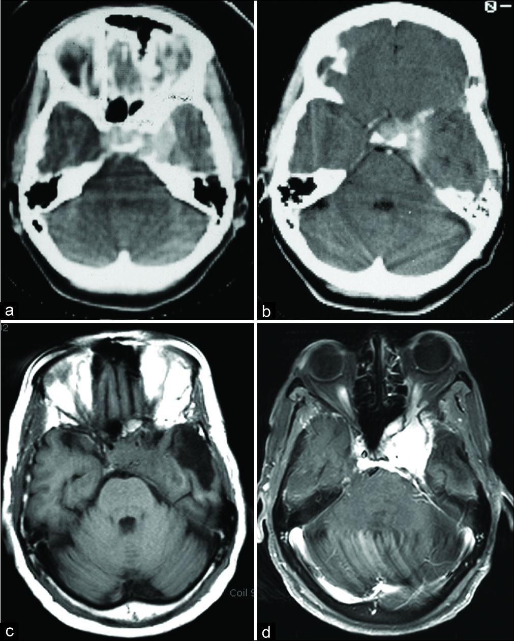 海绵窦脑膜瘤治疗好方法