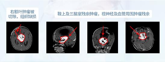 胶质瘤手术
