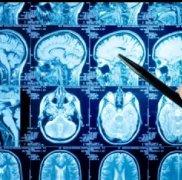 """胶质母细胞瘤(胶质瘤四级)的8个""""必知""""真相"""