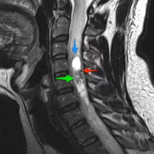 出国看病:脊髓肿瘤(椎管内肿瘤)的治疗及预