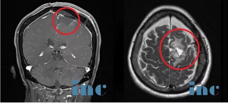 术后脑膜瘤