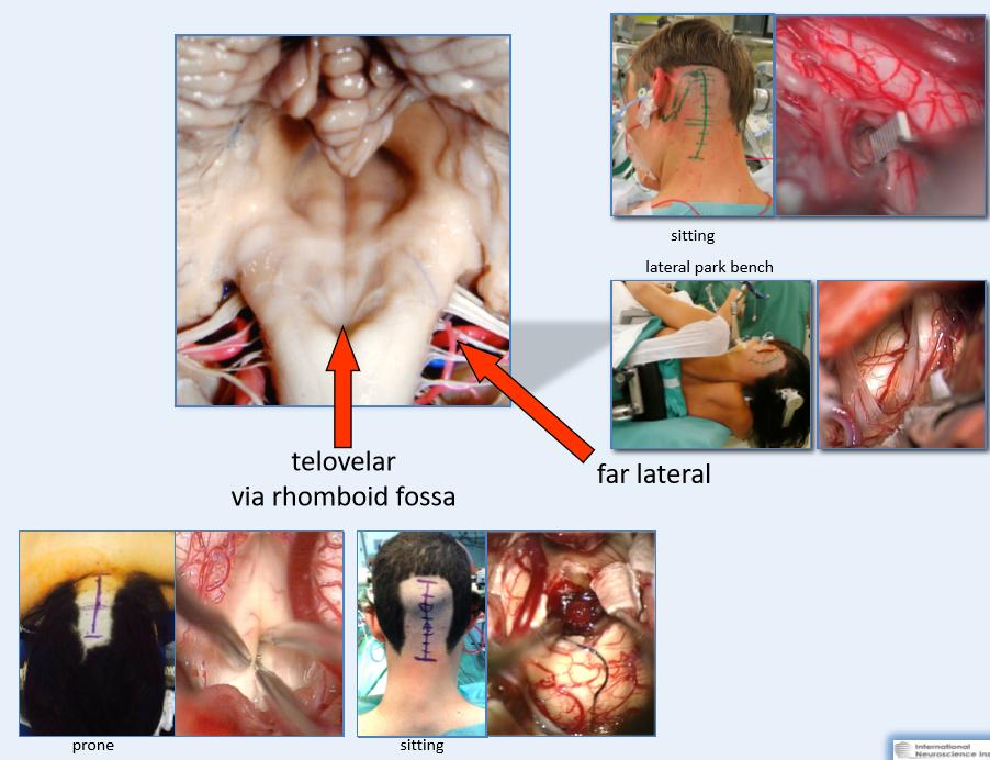 脑干延髓海绵状血管瘤