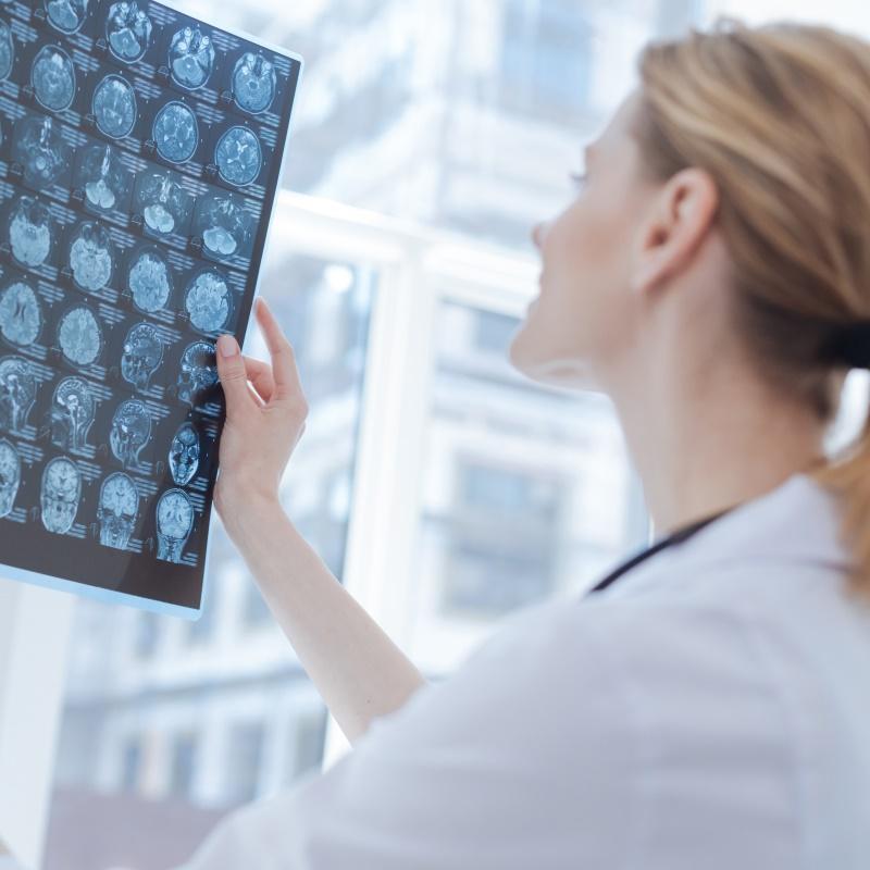 德国巴特朗菲教授20余年231例脑干海绵状血管瘤手术结果分析