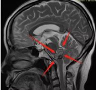 5次脑干海绵状血管瘤出血,第6次后终于得以全切治愈