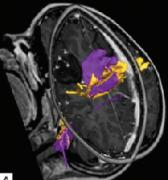 癫痫手术中神经导航及神经监测的使用