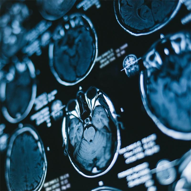 原发性脑干出血的外科治疗目标——改善术后功能预后