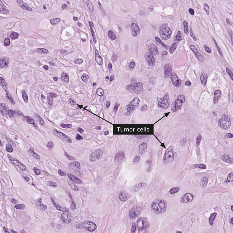 胶质瘤能活多久_脑胶质瘤-INC国际神经外科医生集团